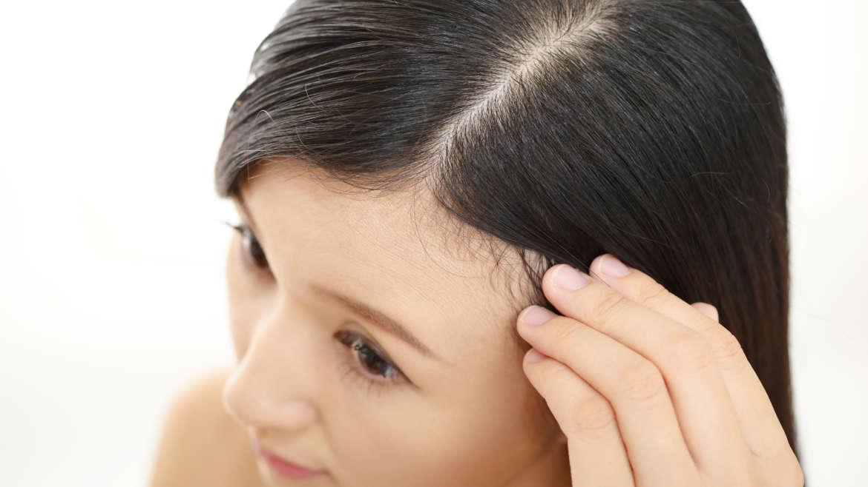 Microagulhamento do couro cabeludo