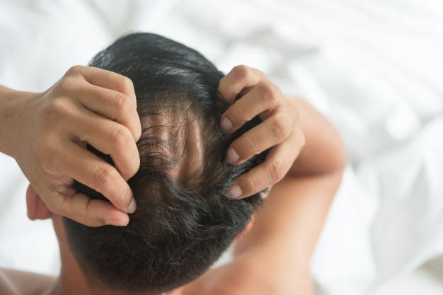 Alopecia e Calvície