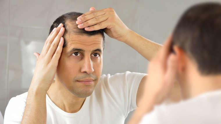 Calvície: o que é e quais tratamentos funcionam melhor?