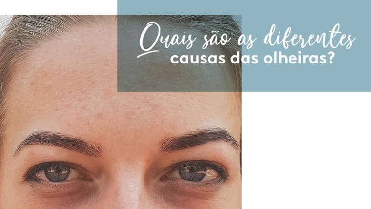 Quais são as diferentes causas das olheiras?